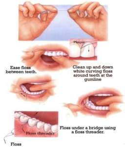 This photo gives step by step instructions on how to use dental floss properly