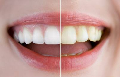 How To Choose Teeth Whitening Strips For Smokers Dentalsreview