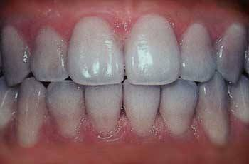 Teeth Stains and Discolorations - Causes and How To Fix Them