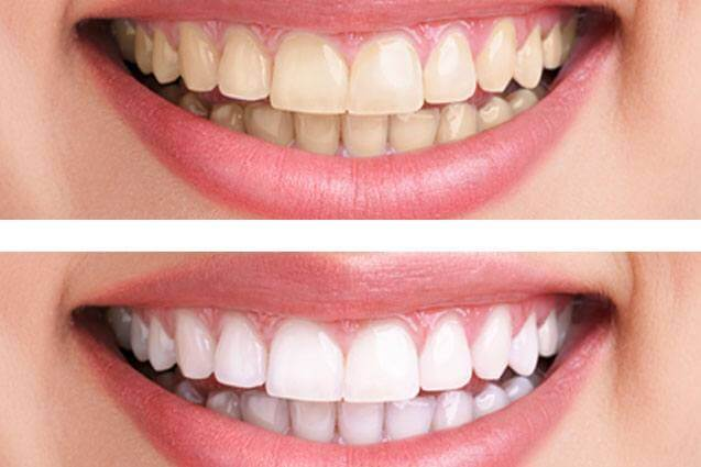 Best Whitening Strips Review 2020 Dentalsreview