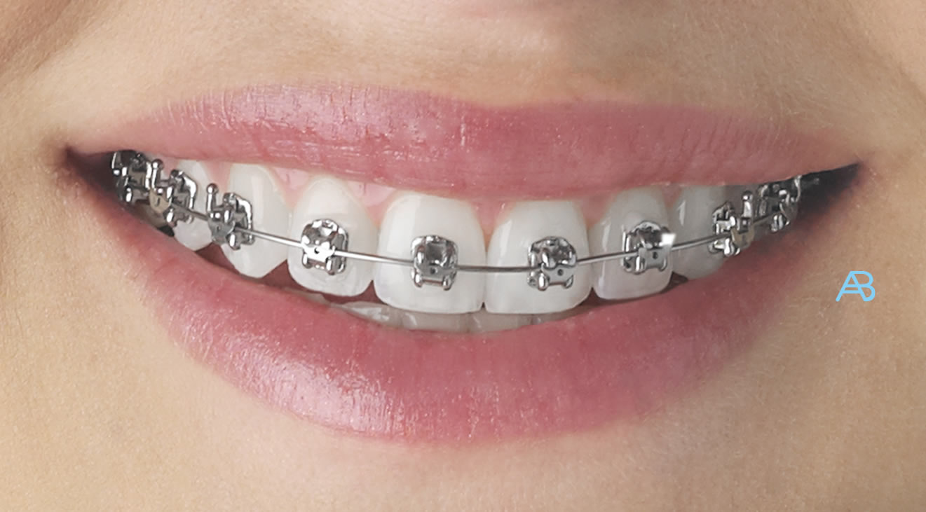 An Ultimate Guide To Maintain Oral Hygiene For Brace