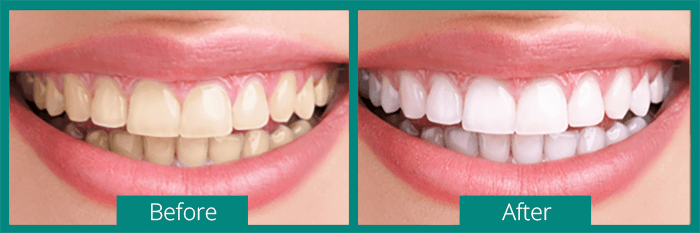 Best Teeth Whitening Gel Review 2018 Dentalsreview