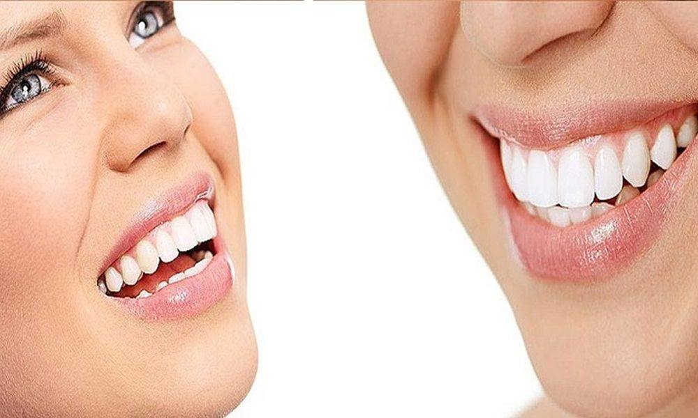 All About Zoom Whitening Review 2018 Cost Side Effects Before